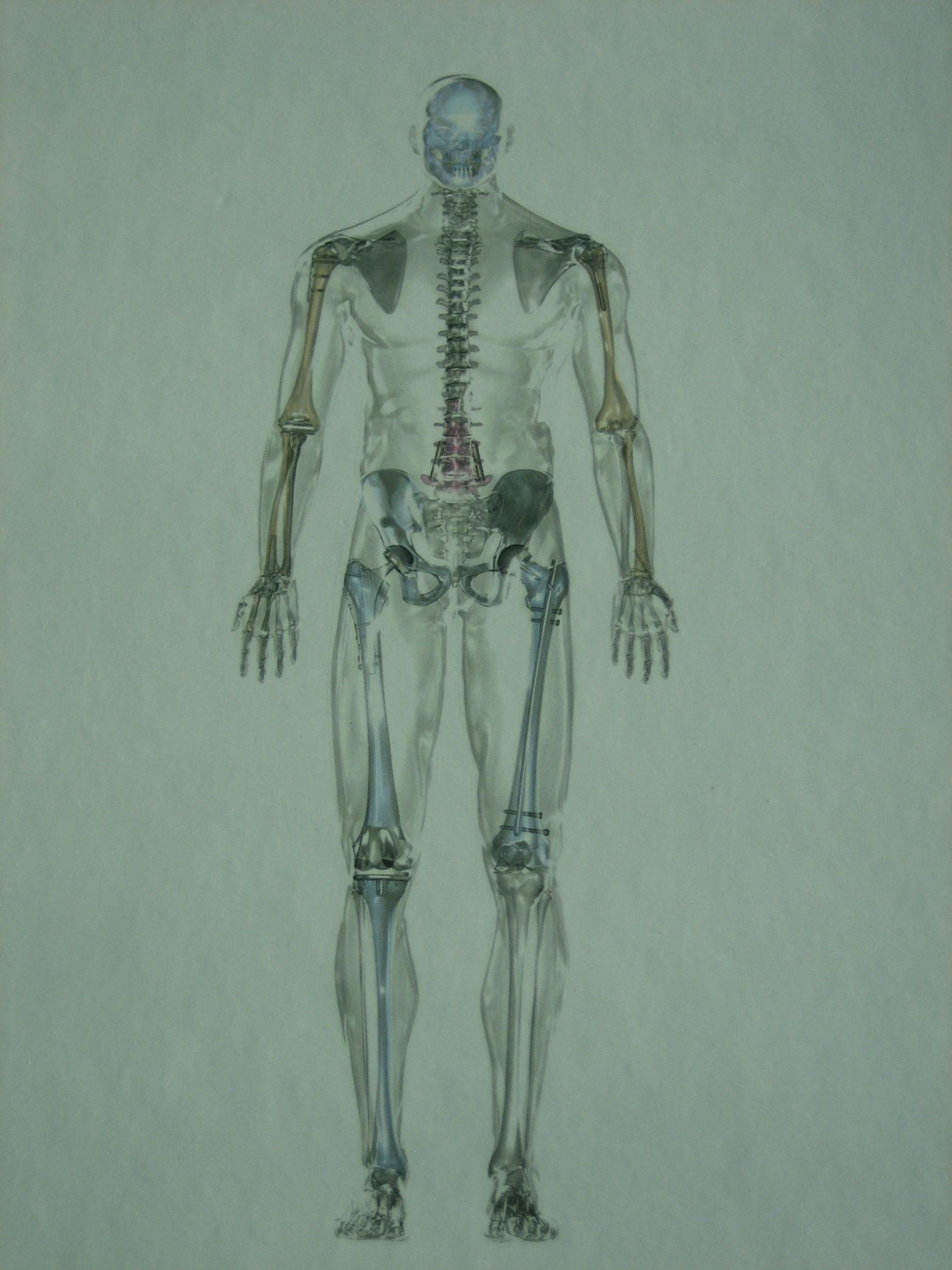 ¿Qué es la traumatología y cirugía ortopédica? Traumatología en Salamanca.