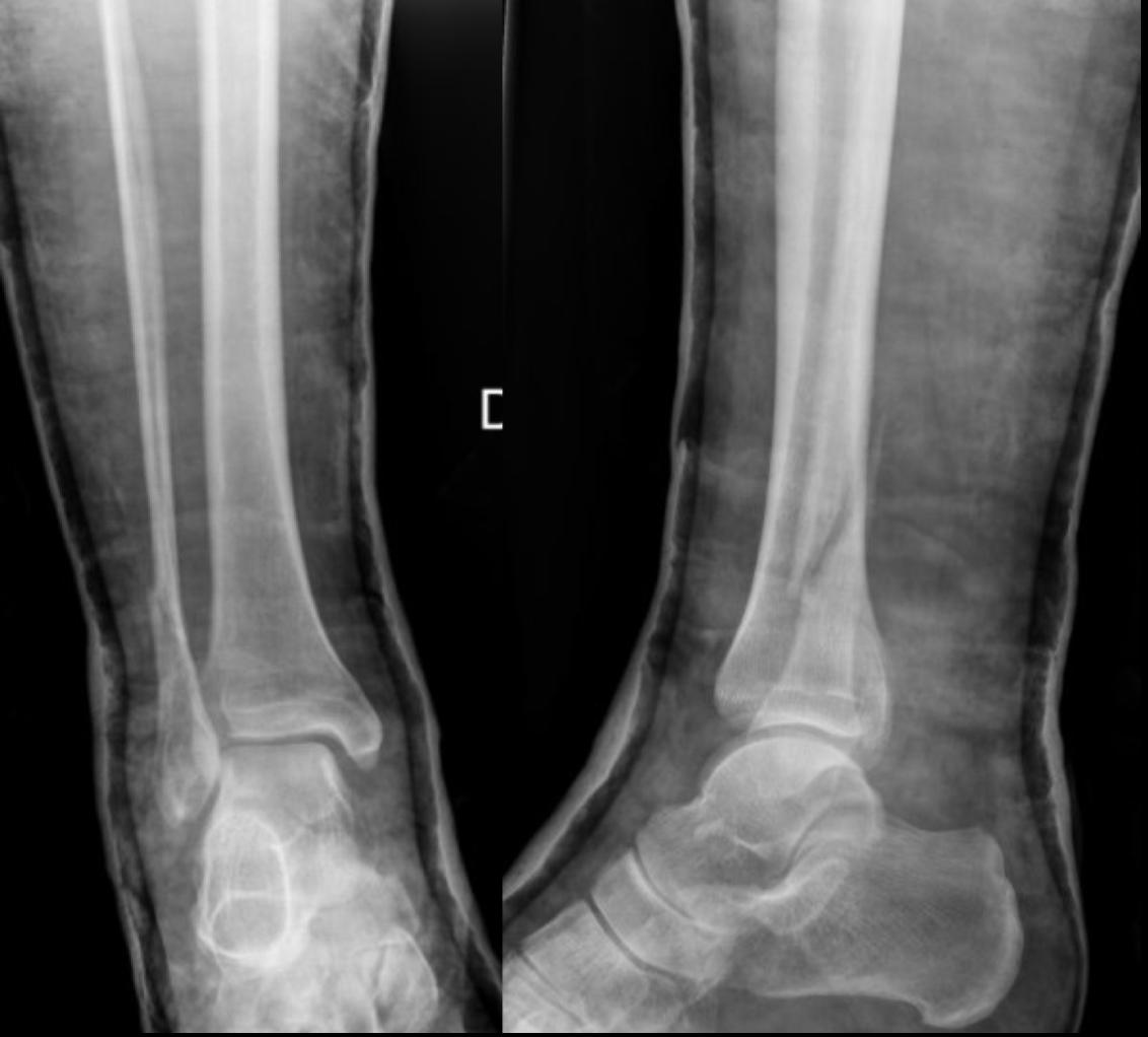 Fractura de tobillo: entiende su anatomía y biomecánica en las fracturas tipo C