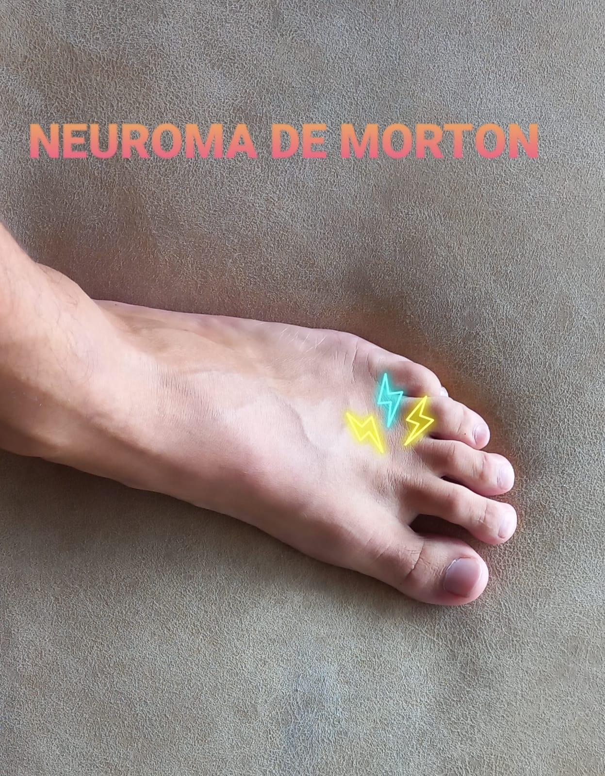NEUROMA DE MORTON: NO TODO DOLOR EN EL PIE SON JUANETES O FASCITIS.